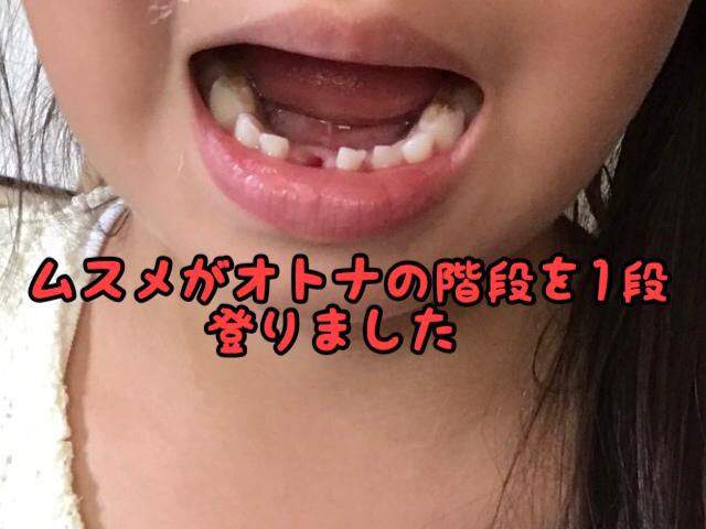 【歓喜】ビックリ!!はじめてムスメの歯が抜けました