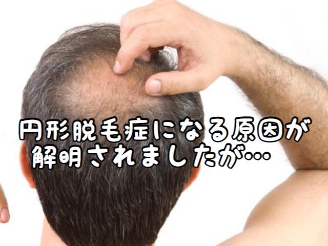 【トラブル】円形脱毛症になってしまう本当の理由が解明されましたが・・・
